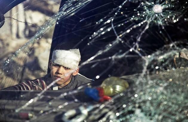 کودک سوری منبع: الجزیره